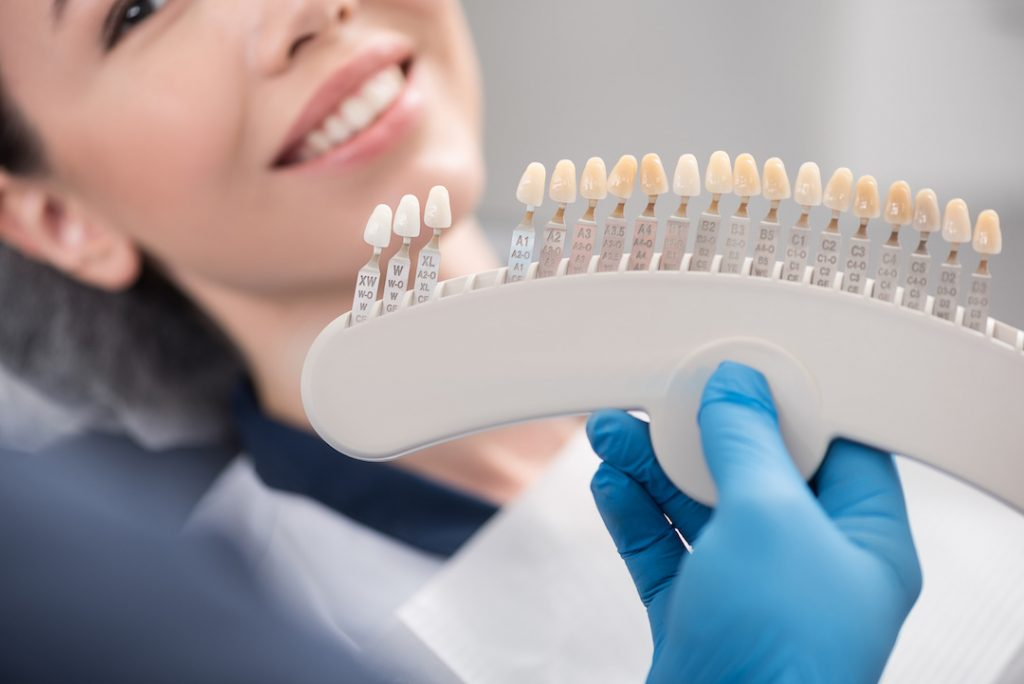 Read more on The Pros of Veneers: Tips from Your Penticton Dentist