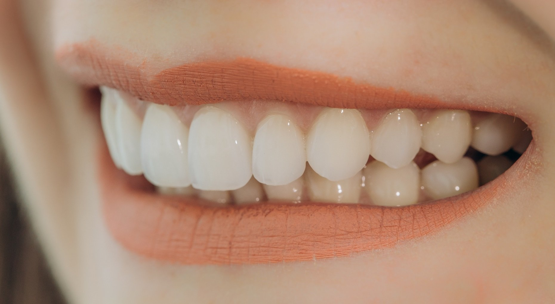 the pros of veneers Hollywood smile with porcelain crowns and veneers