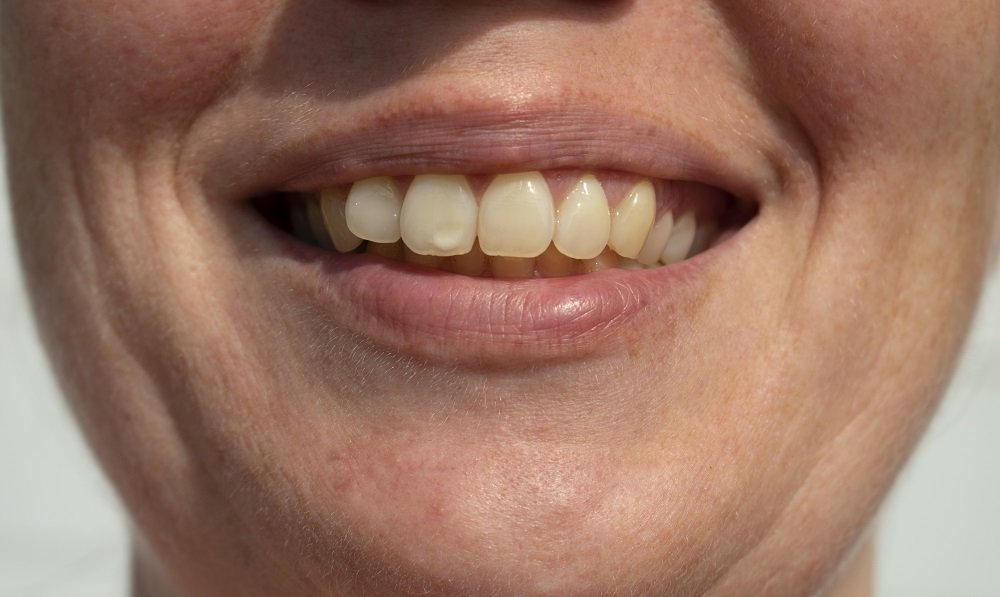 Read more on What Causes White Spots on Teeth?
